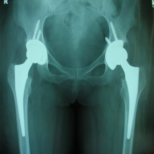 Total Hip Replacement (THR Non Cemented)